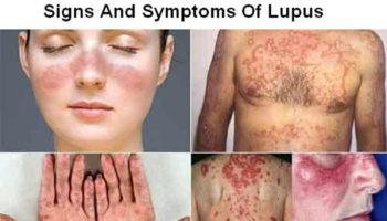 lupus-disease