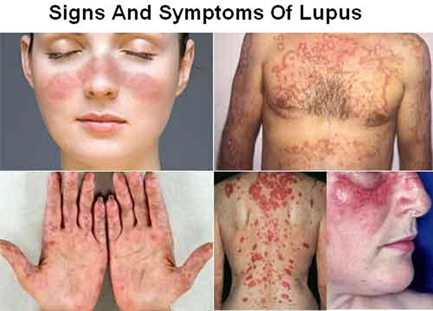 systemic lupus Systemic lupus erythematosus definition, an autoimmune inflammatory disease  of the connective tissues, occurring mainly among middle-aged women, chiefly.