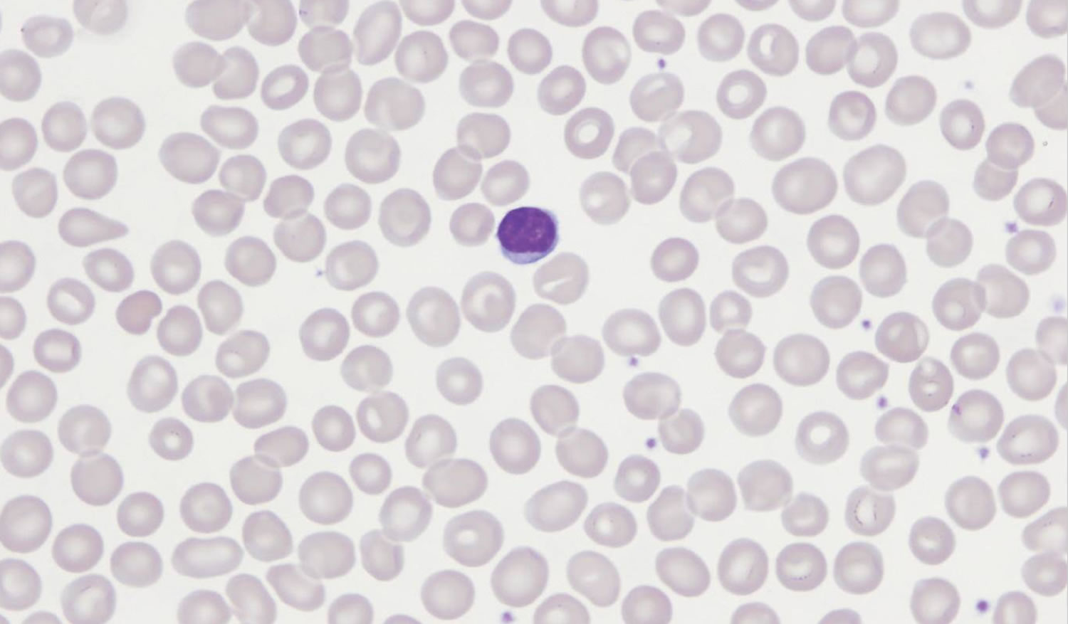 Macrocytic Anemia - Causes, Symptoms & Macrocytic Anemia ... B12 Deficiency Smear