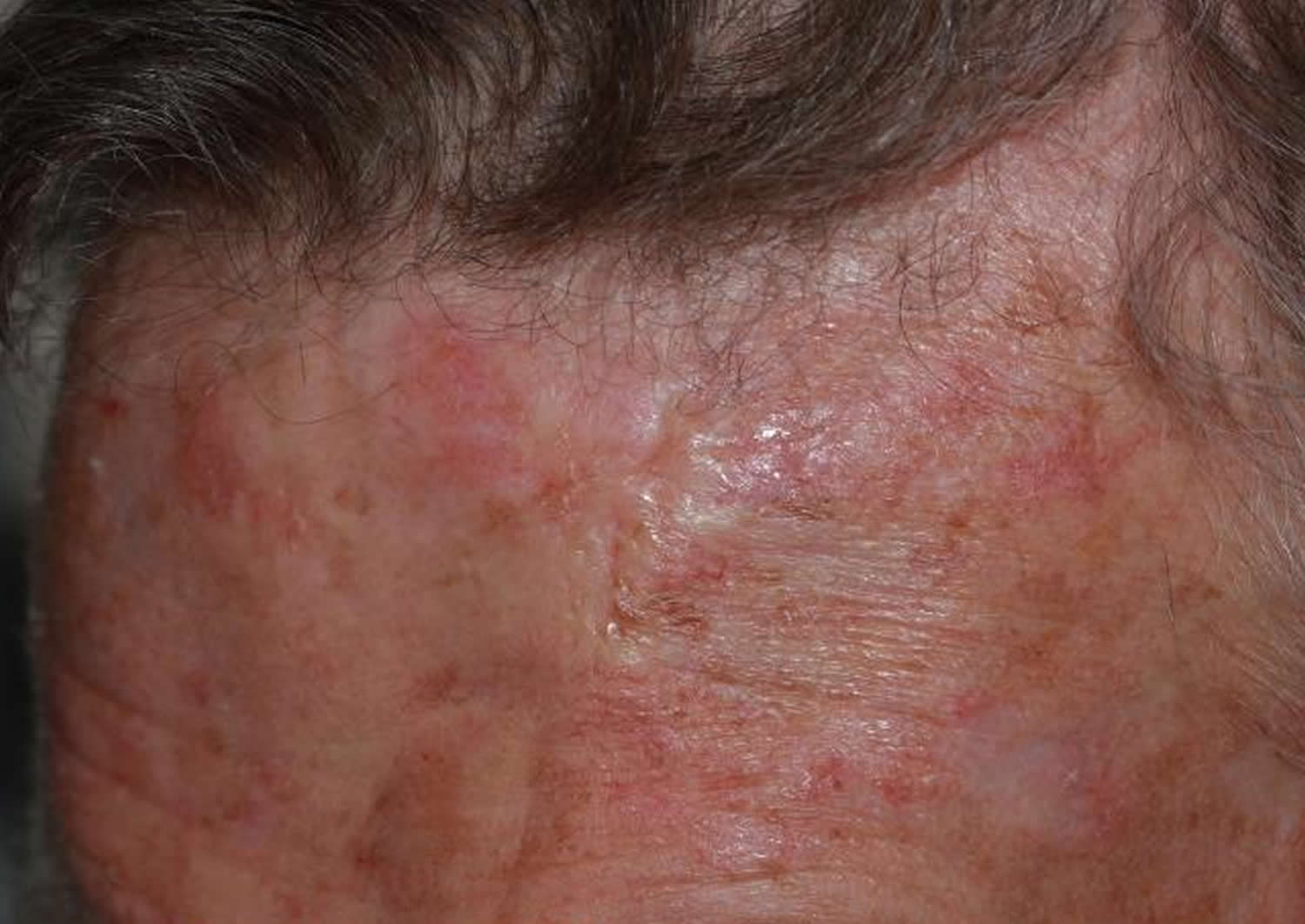 morpheaform basal cell carcinoma - scalp