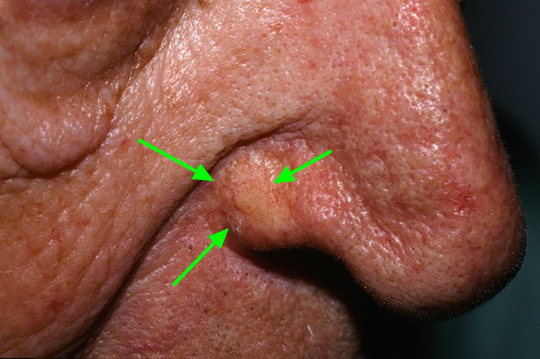 morpheaform basal cell carcinoma