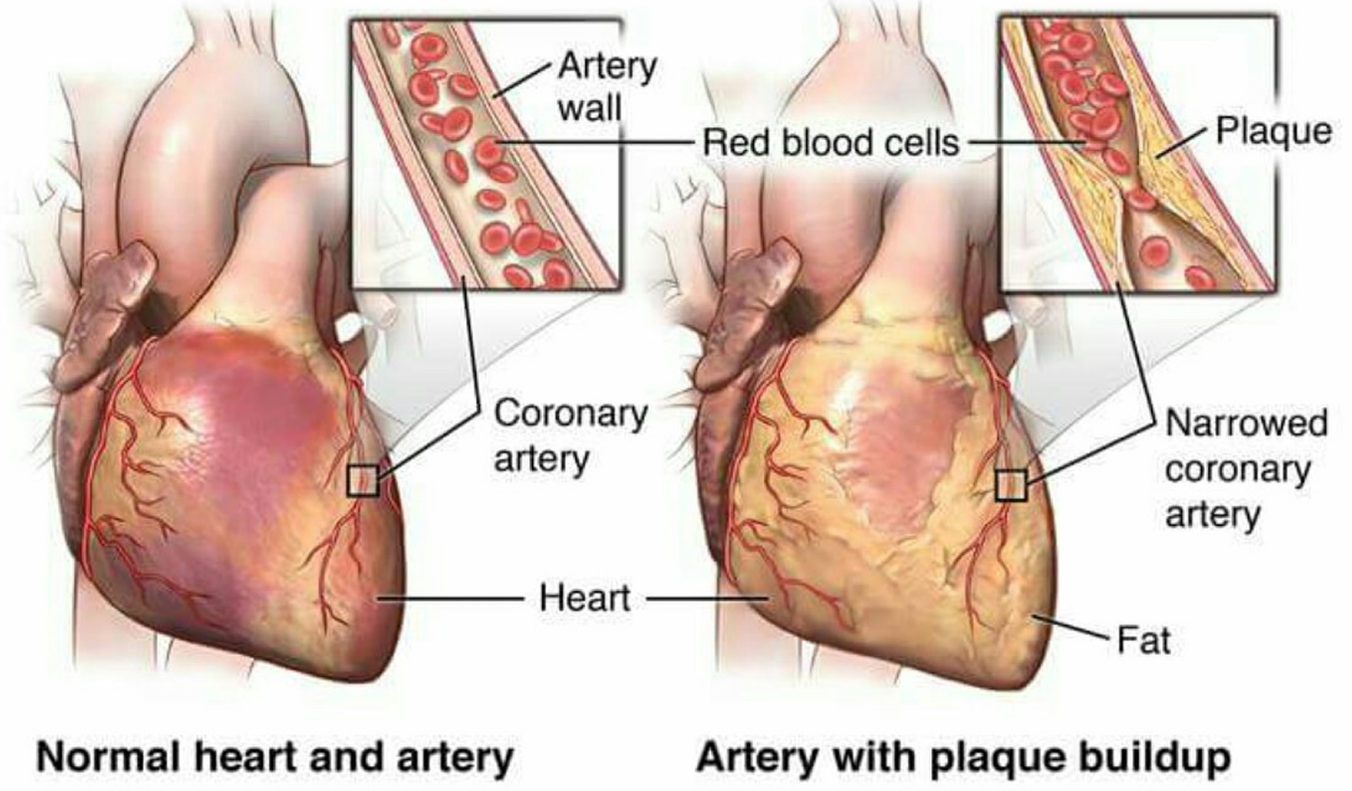 the definition and causes of a myocardial infraction Myocardial ischemia & infarction: reactions, ecg changes & symptoms  to as myocardial infarction  blood flow and cause symptoms during increased myocardial.