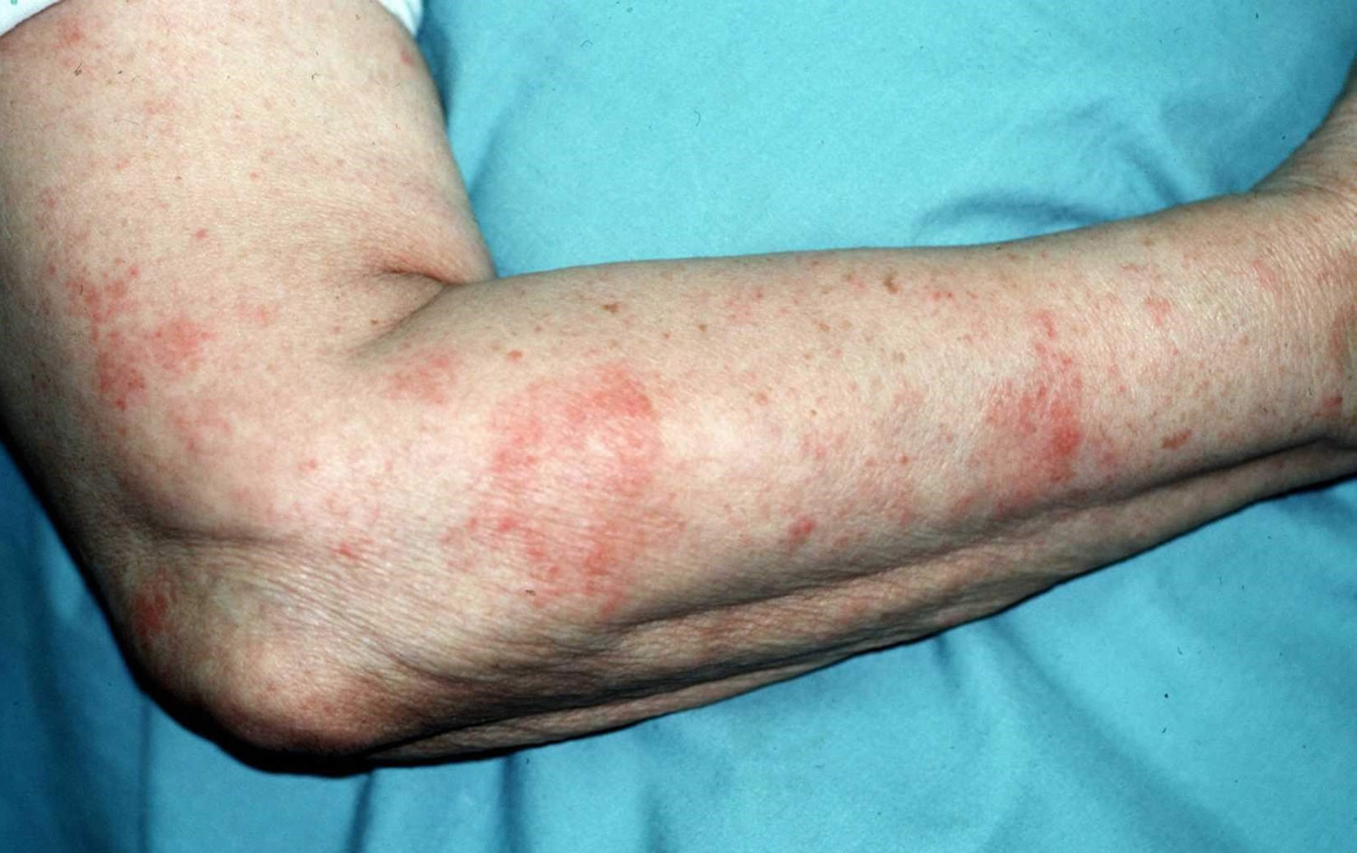 Home Remedies For Bad Eczema On Hands