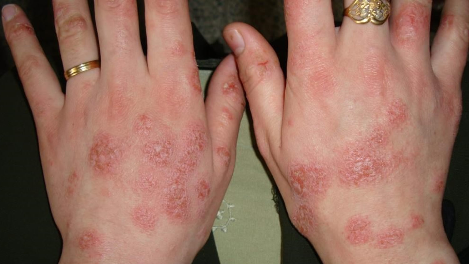 Eczema Hand Face Baby Causes Symptoms Amp Treatment