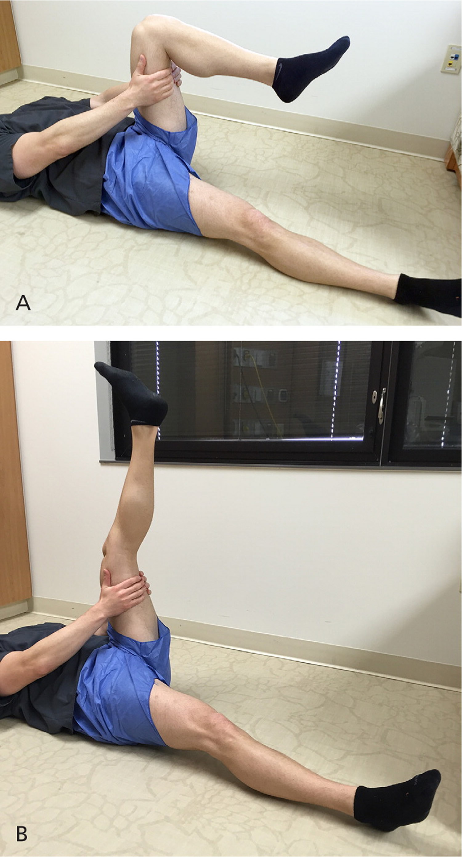 patello femoral pain syndrome exercises