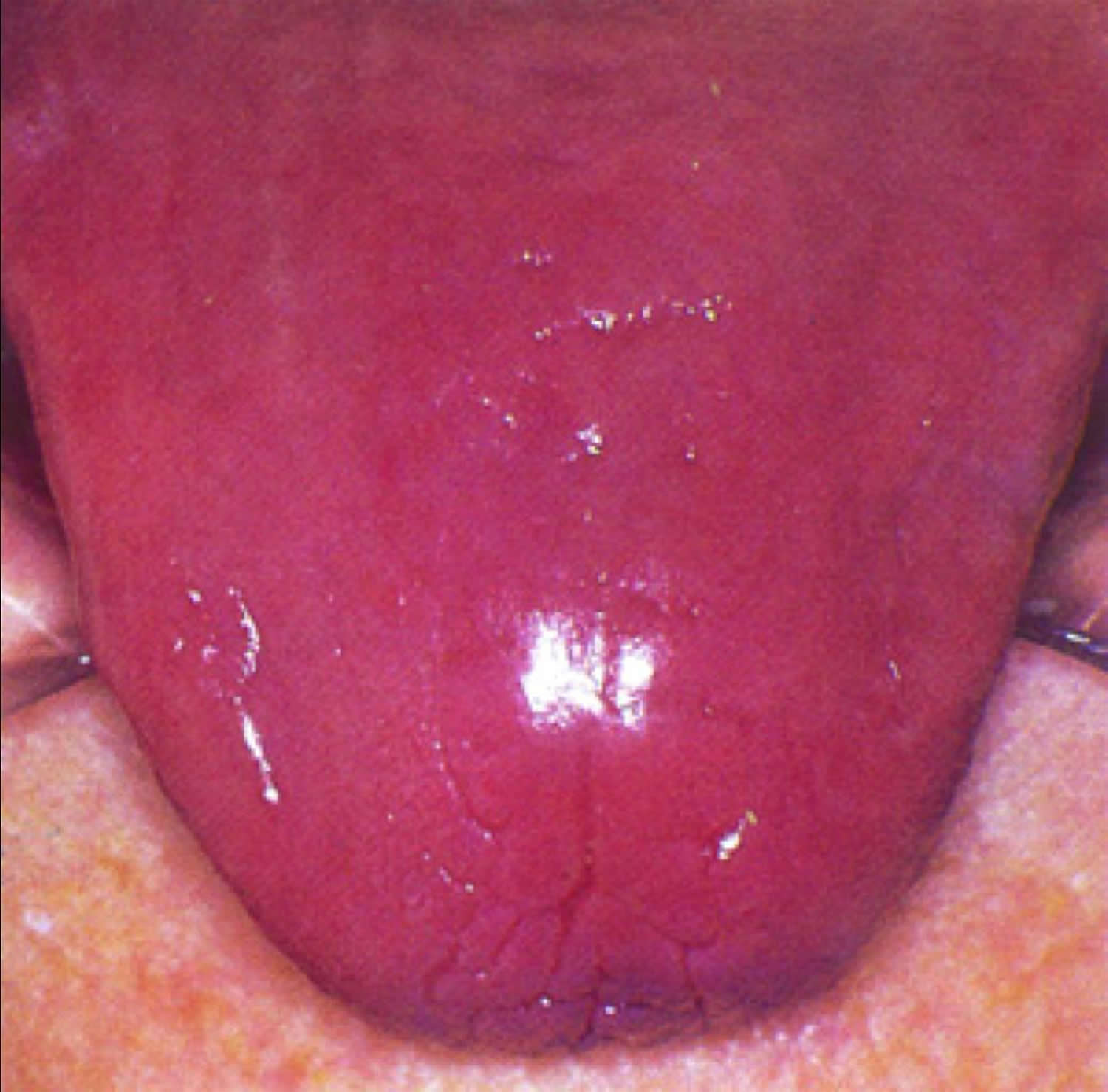 Pernicious Anemia - Causes, Signs, Symptoms, Treatment B12 Deficiency Tongue
