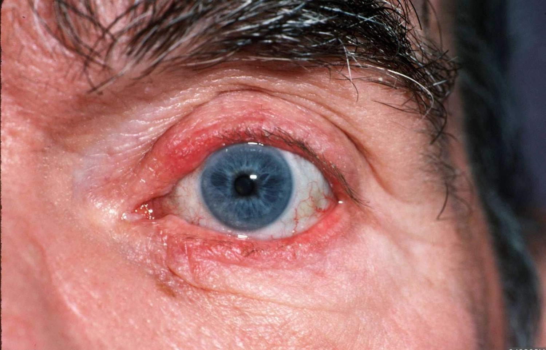seborrheic dermatitis eyelid