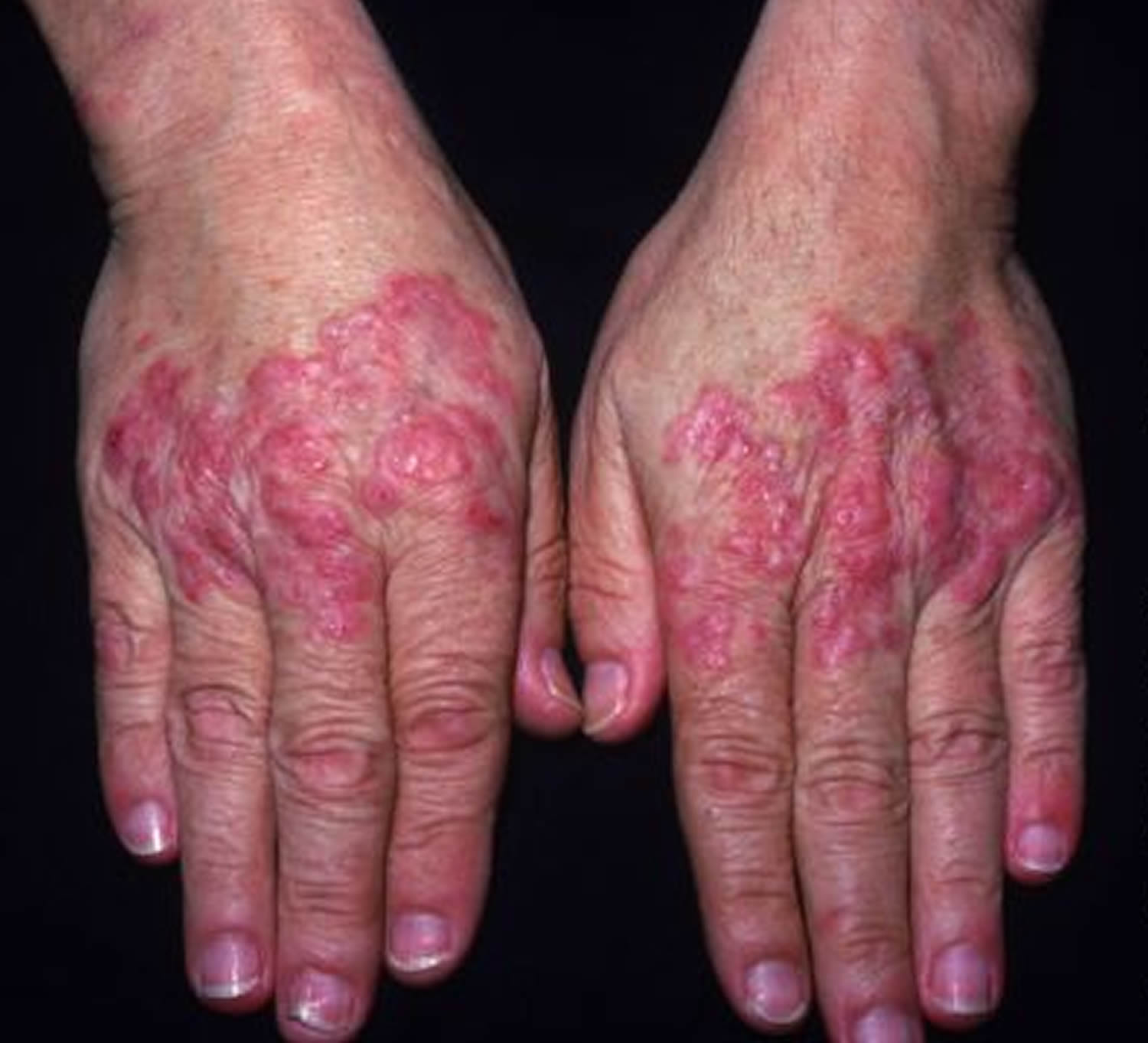 Lupus systemic lupus erythematosus sle causes sign symptoms systemic lupus erythematosus rash sciox Image collections