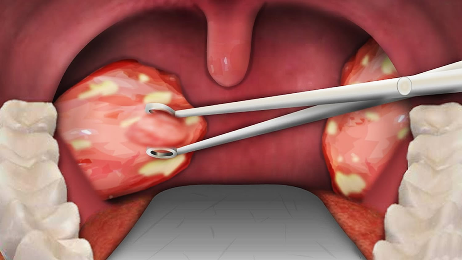 Tonsillectomy - Indications, Recovery Time, Cost, And -5540