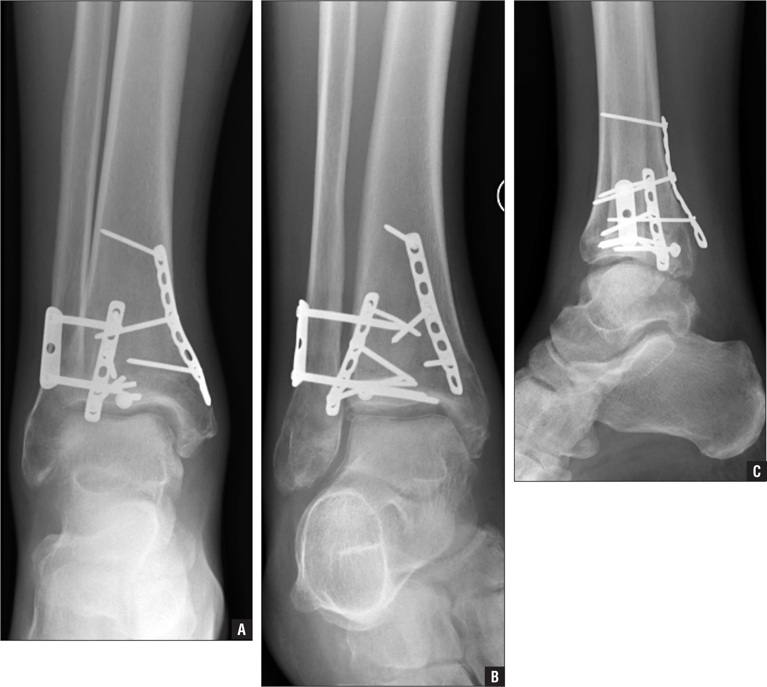 trimalleolar ankle fracture surgical repair