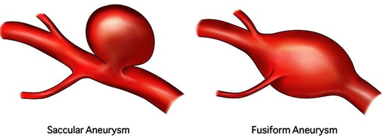 types of brain aneurysms