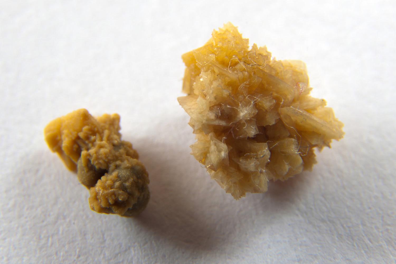 uric acid stones