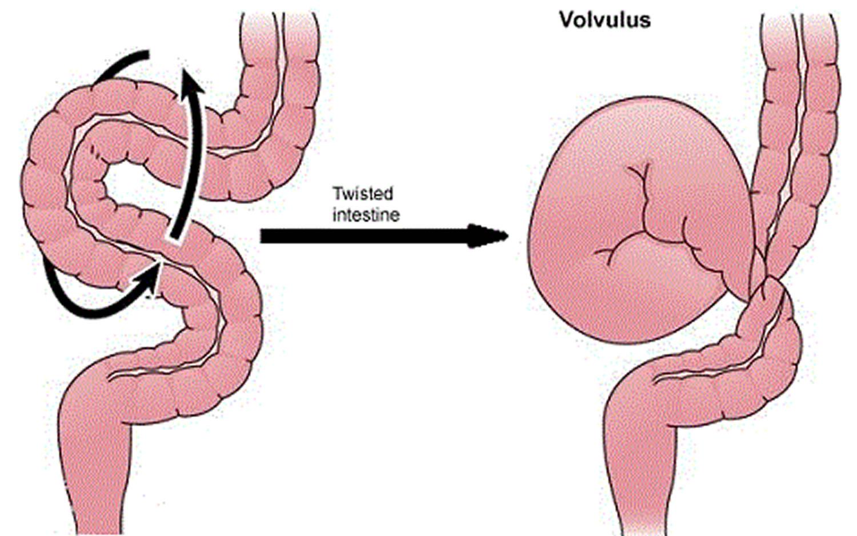 volvulus_intestine