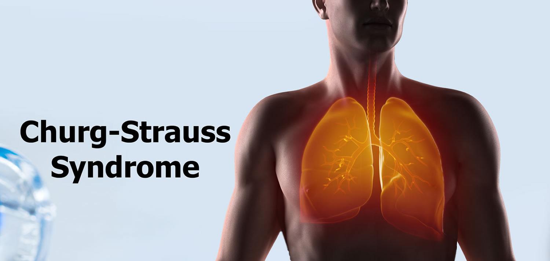 Churg-Strauss-Syndrome