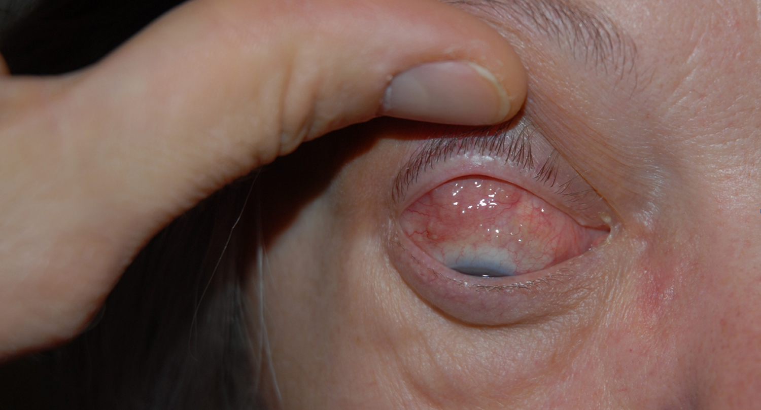 Churg-Strauss syndrome conjunctival granulomas