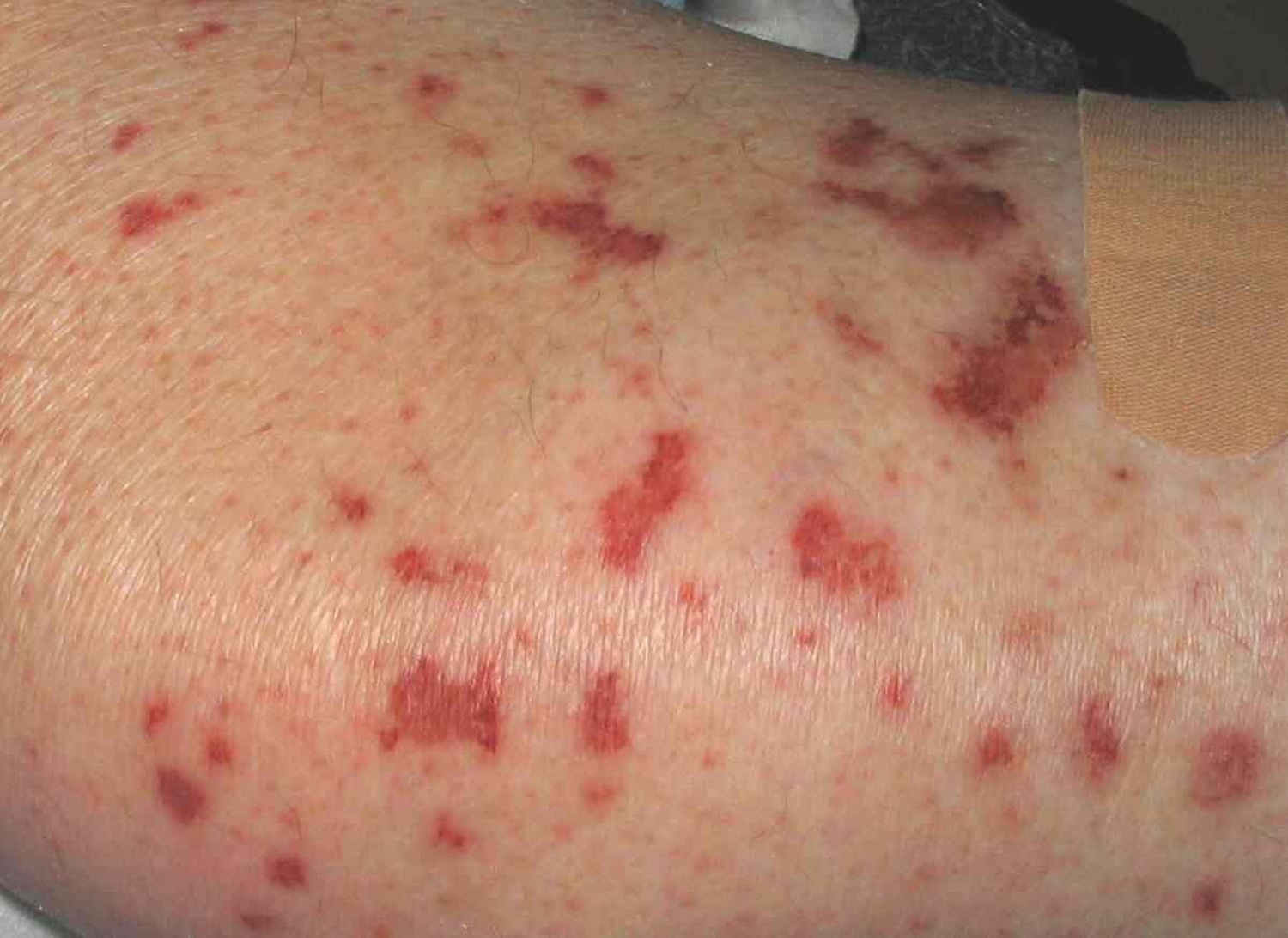 Churg Strauss syndrome skin rash - eosinophilic phase