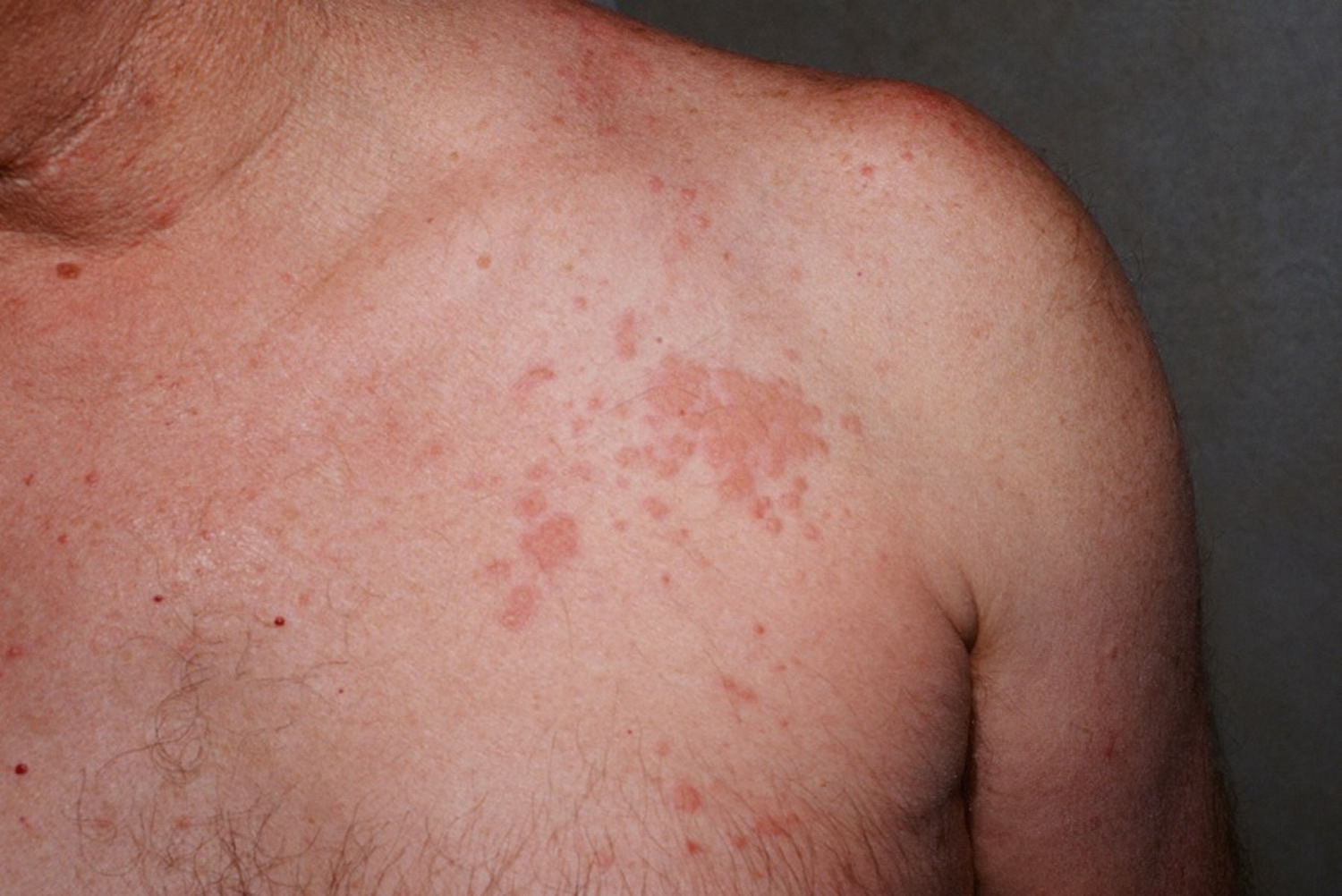 Churg-Strauss syndrome skin rash