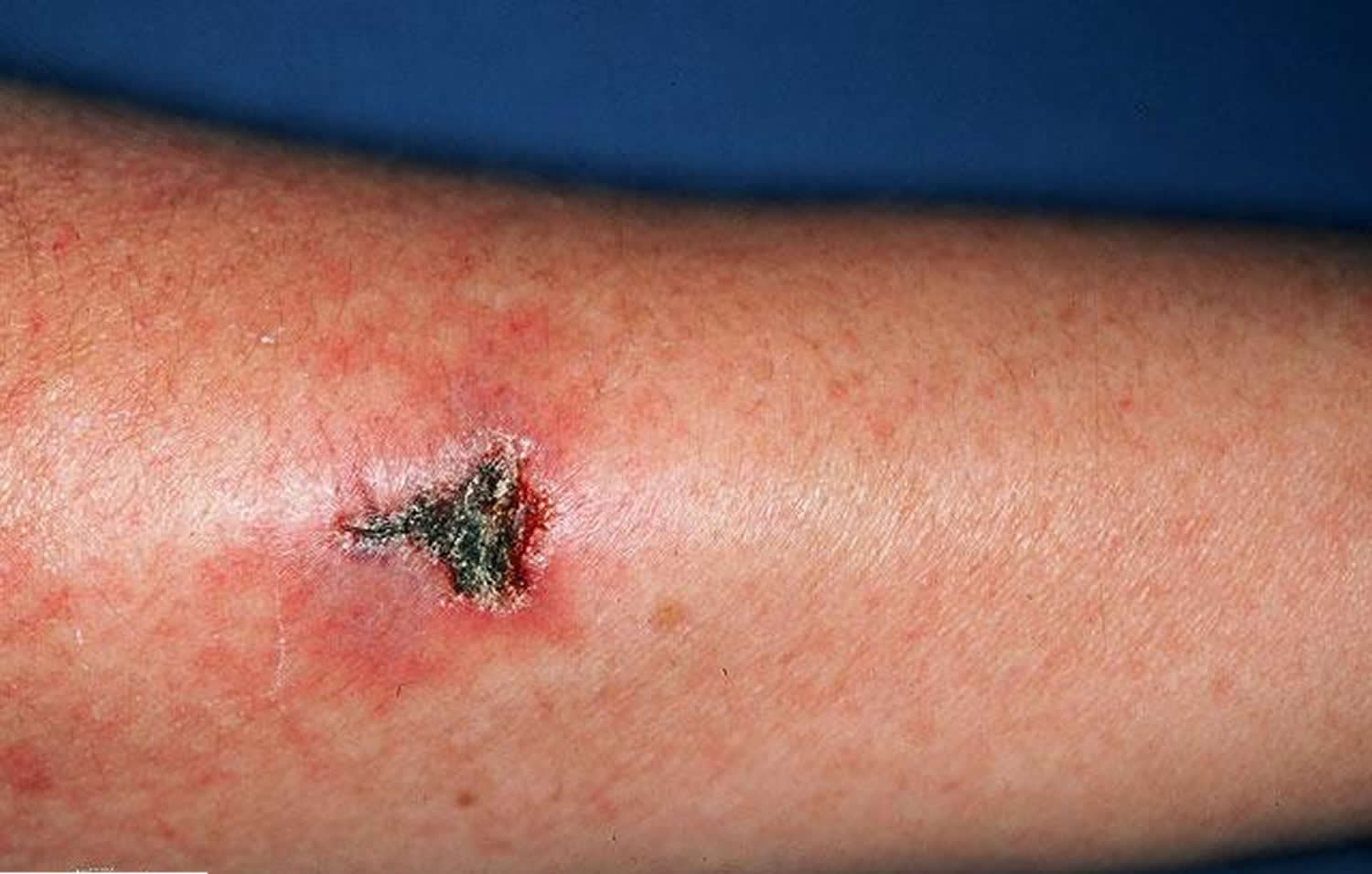 Churg-Strauss syndrome skin vasculitis