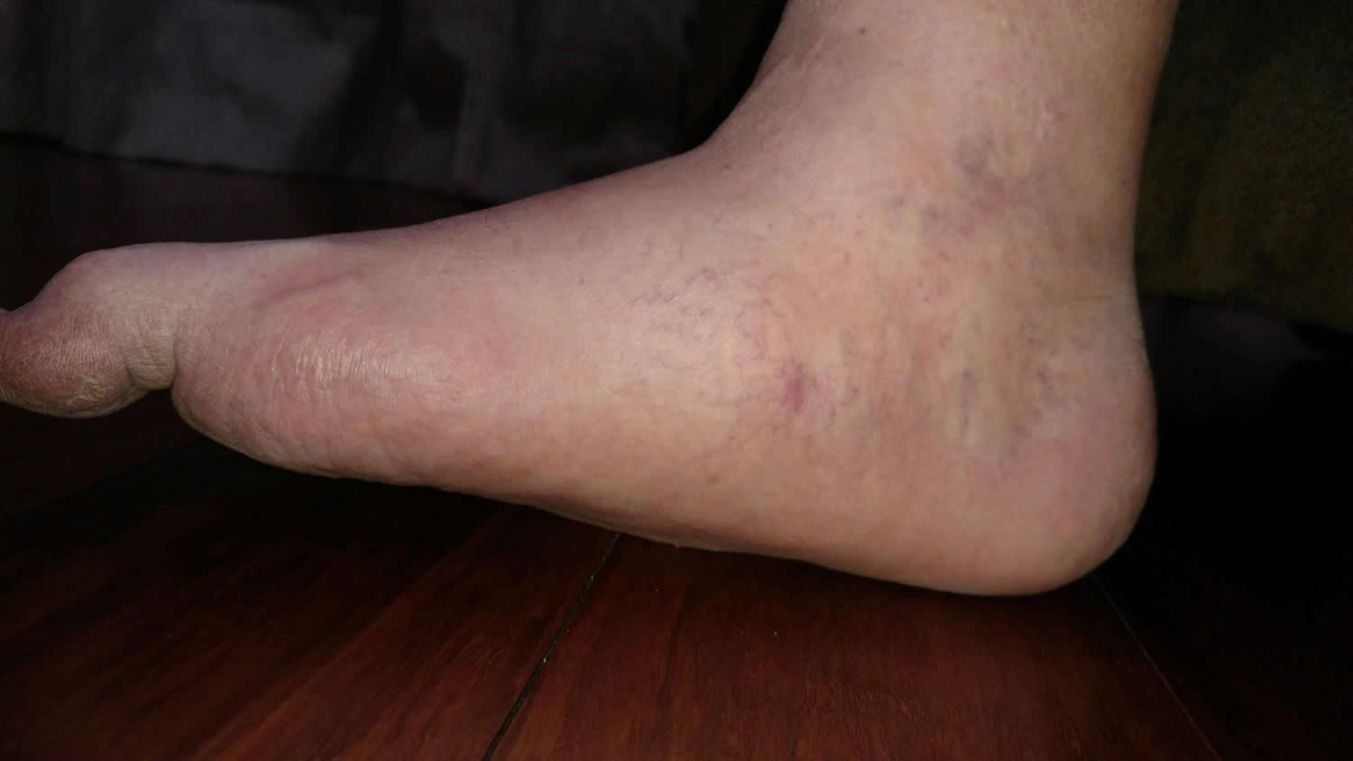 Diabetic Collapse - Charcot Foot