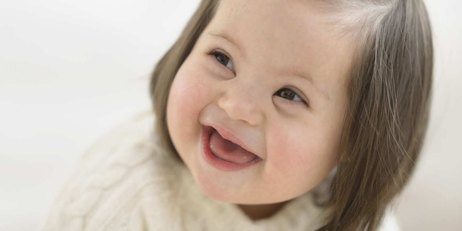 The causes and symptoms of Down syndrome