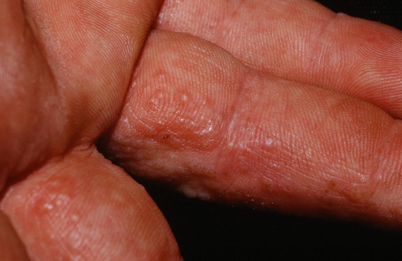 Dyshidrosis fingers