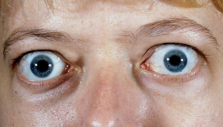 Graves Disease Causes Signs Symptoms Medication