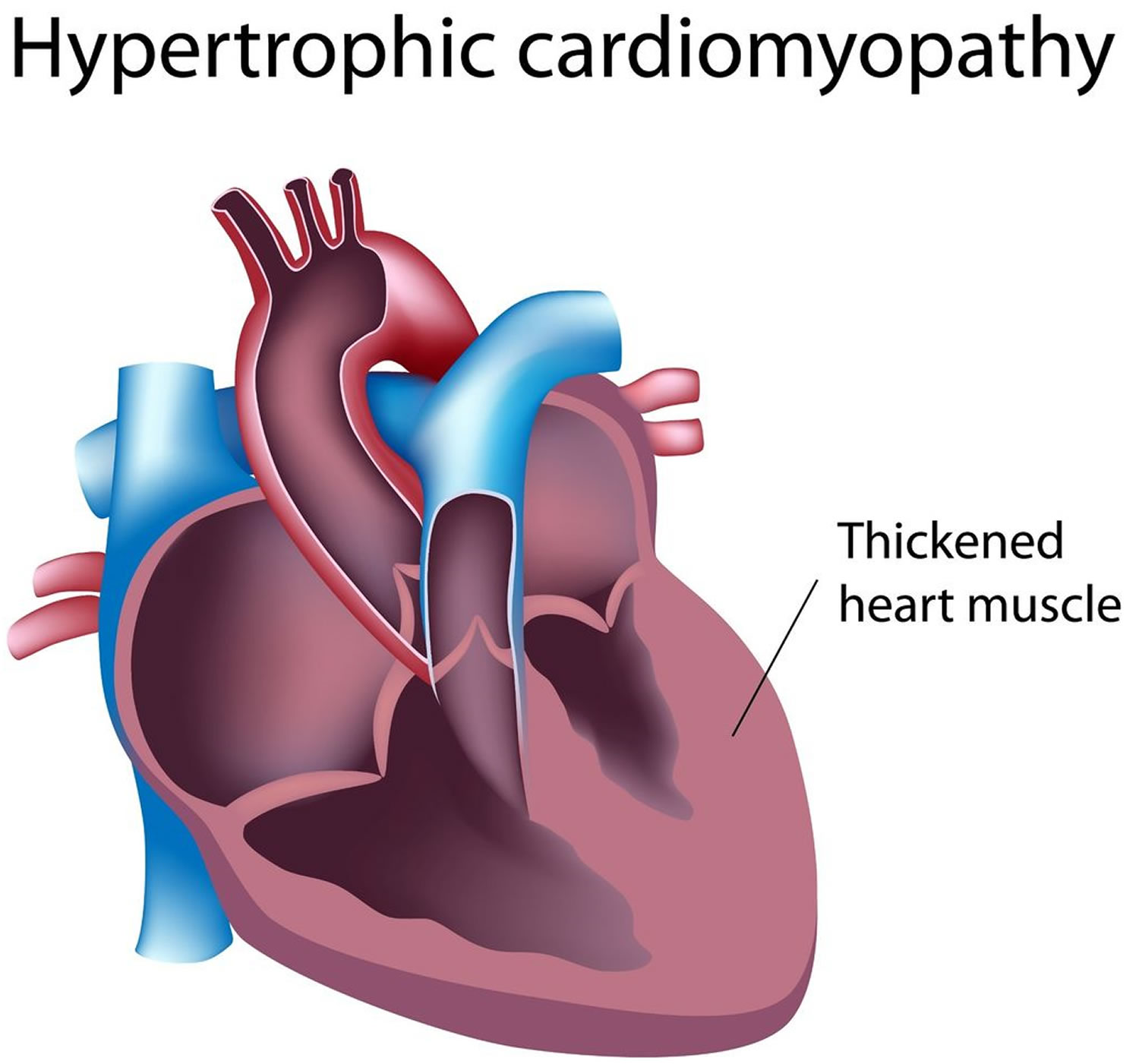 Hypertrophic Cardiomyopathy Causes Symptoms Treatment