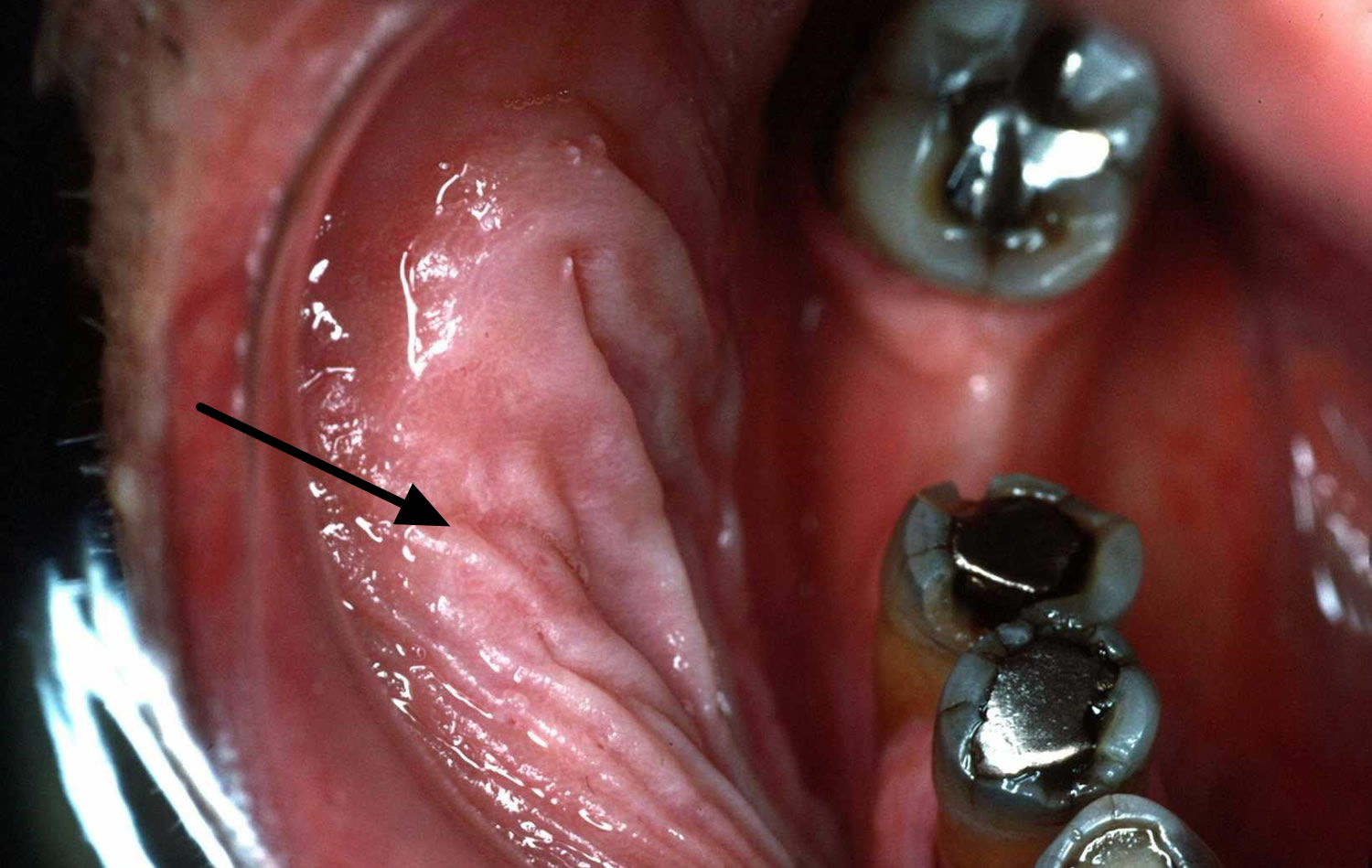 Leukoplakia, Hairy Leukoplakia - Causes, Diagnosis, Treatment