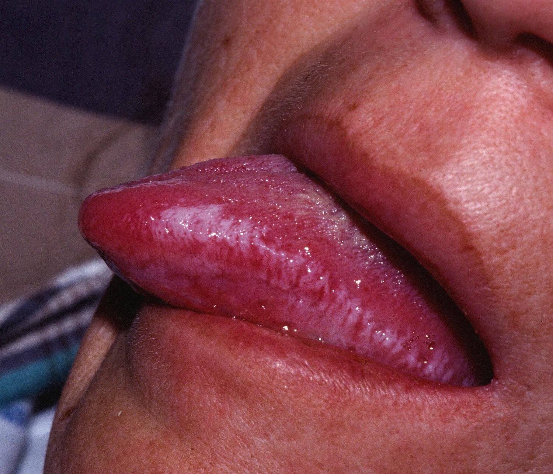 Leukoplakia vulva (symptoms and treatment)