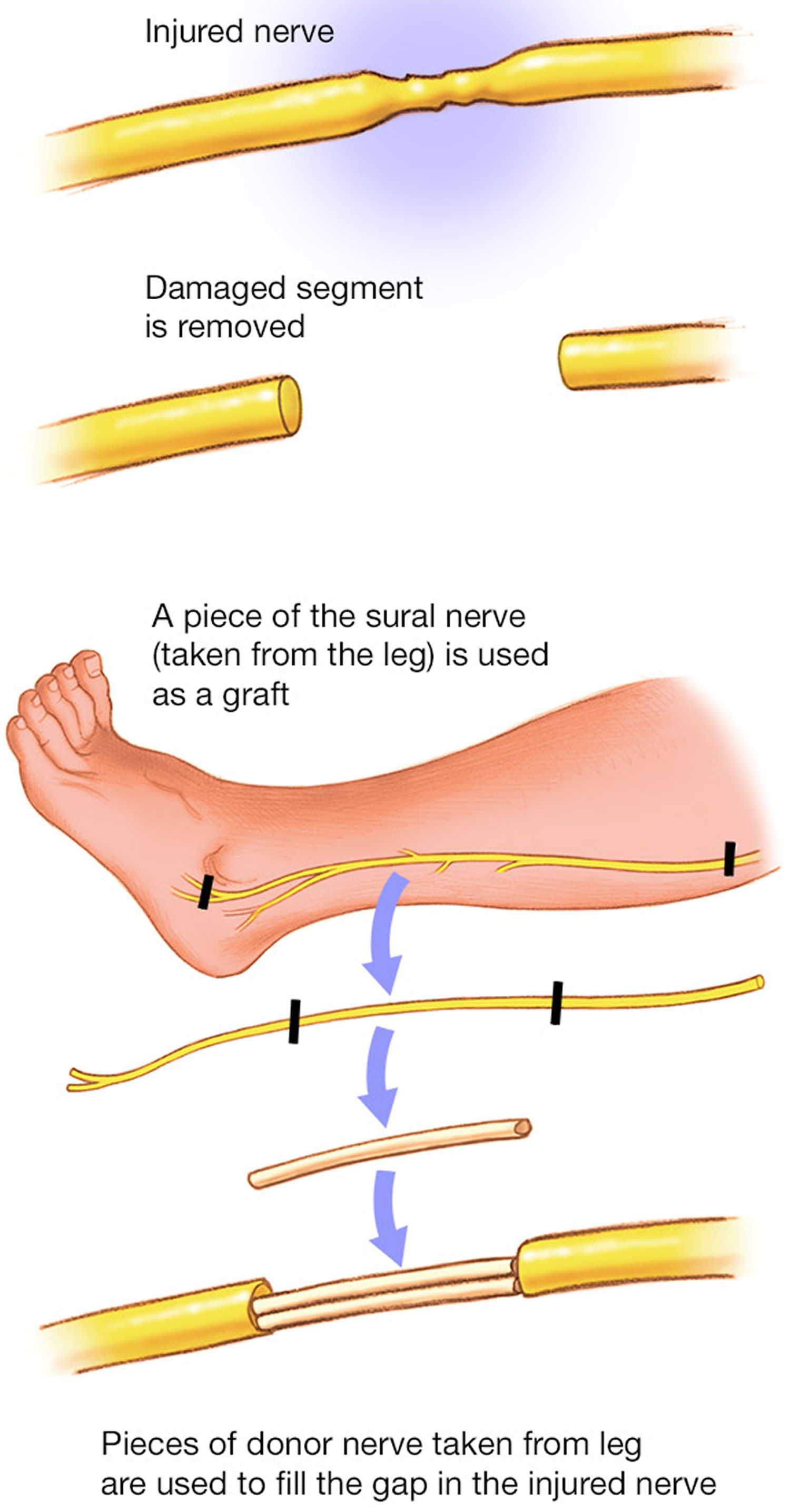 Nerve graft