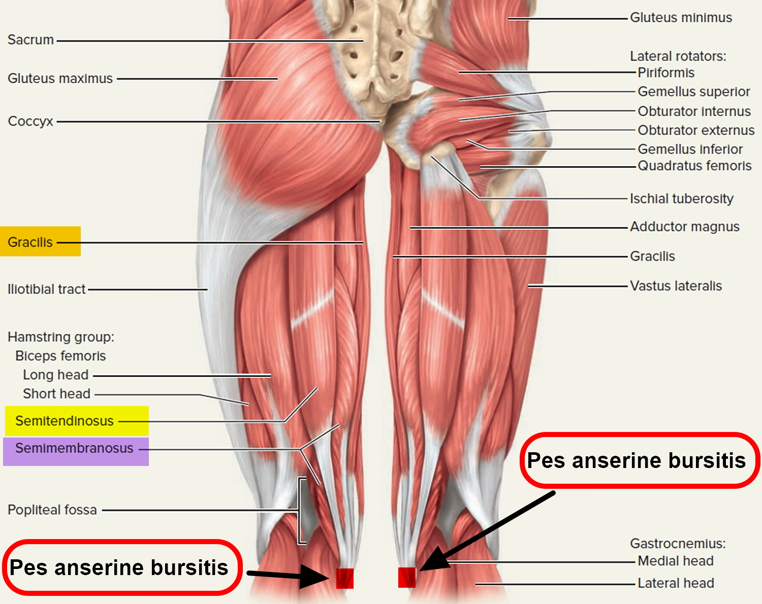Bursitis - Hip, Trochanteric, Knee, Shoulder, Elbow - Causes & Treatment
