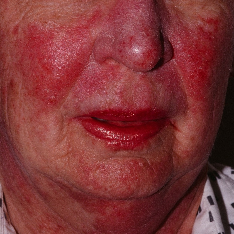 Photosensitivity lupus