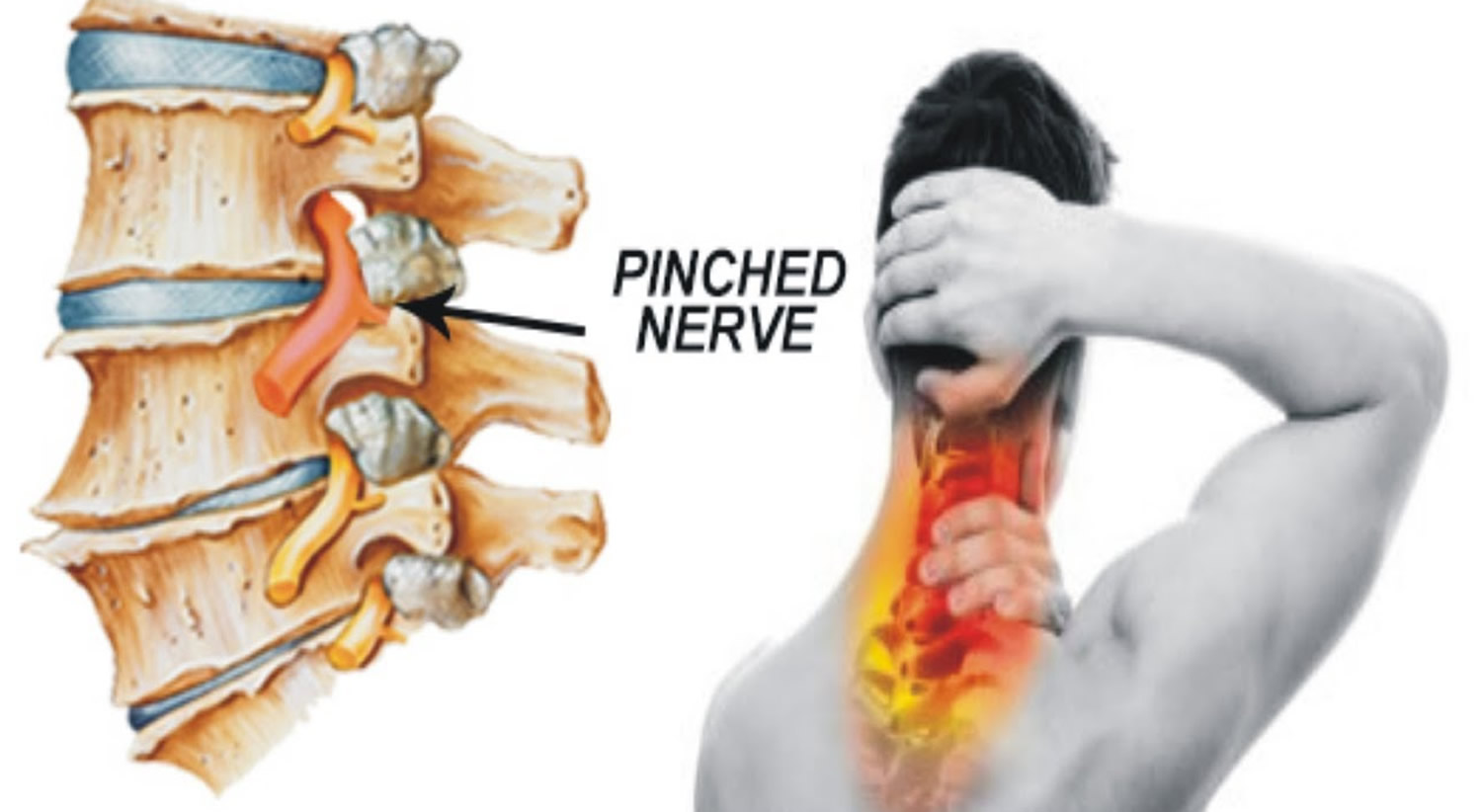 Pinched Nerve In Neck Arm Shoulder Causes Symptoms Treatment