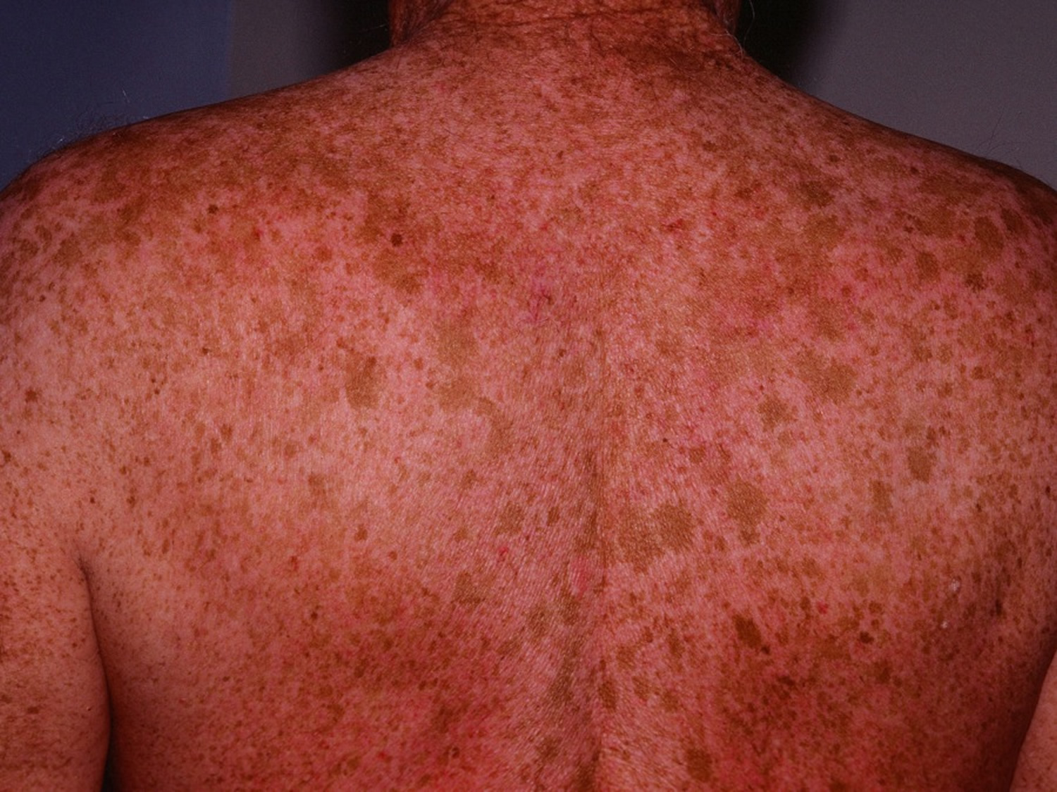 Age Spots Causes How To Get Rid Cream Amp Treatment