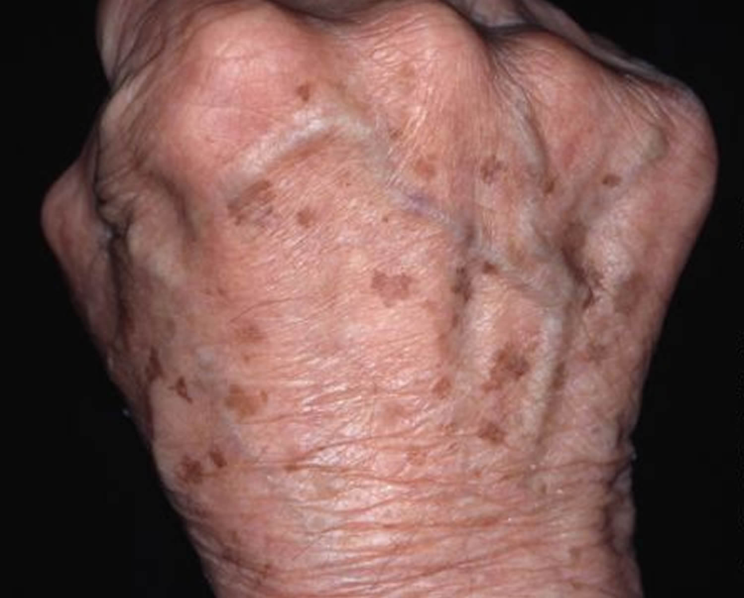 Age Spots - Causes, How To Get Rid, Cream & Treatment