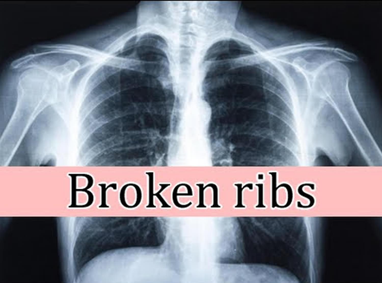 broken rib