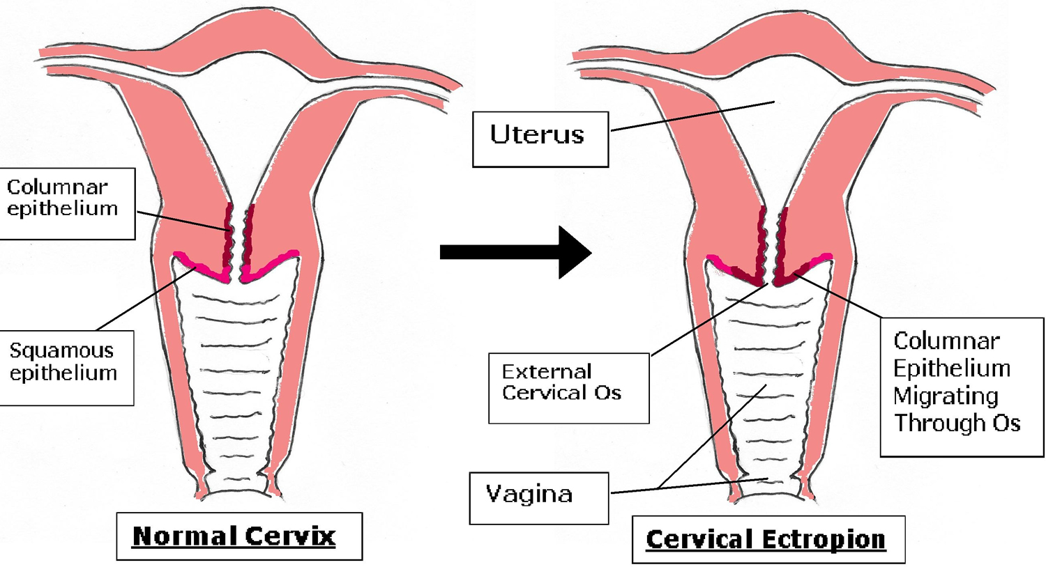 How to treat cervical erosion Cervical erosion: methods of treatment. Cervical erosion: effects 96