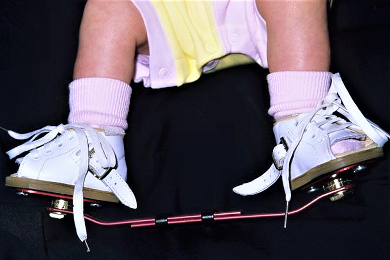 clubfoot brace