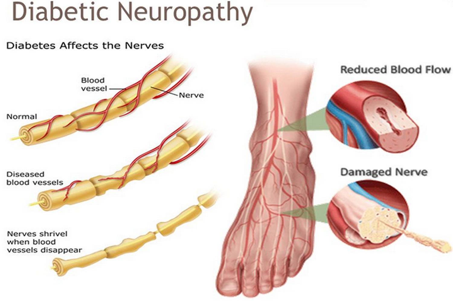 Diabetic Neuropathy Causes Symptoms Signs Medications