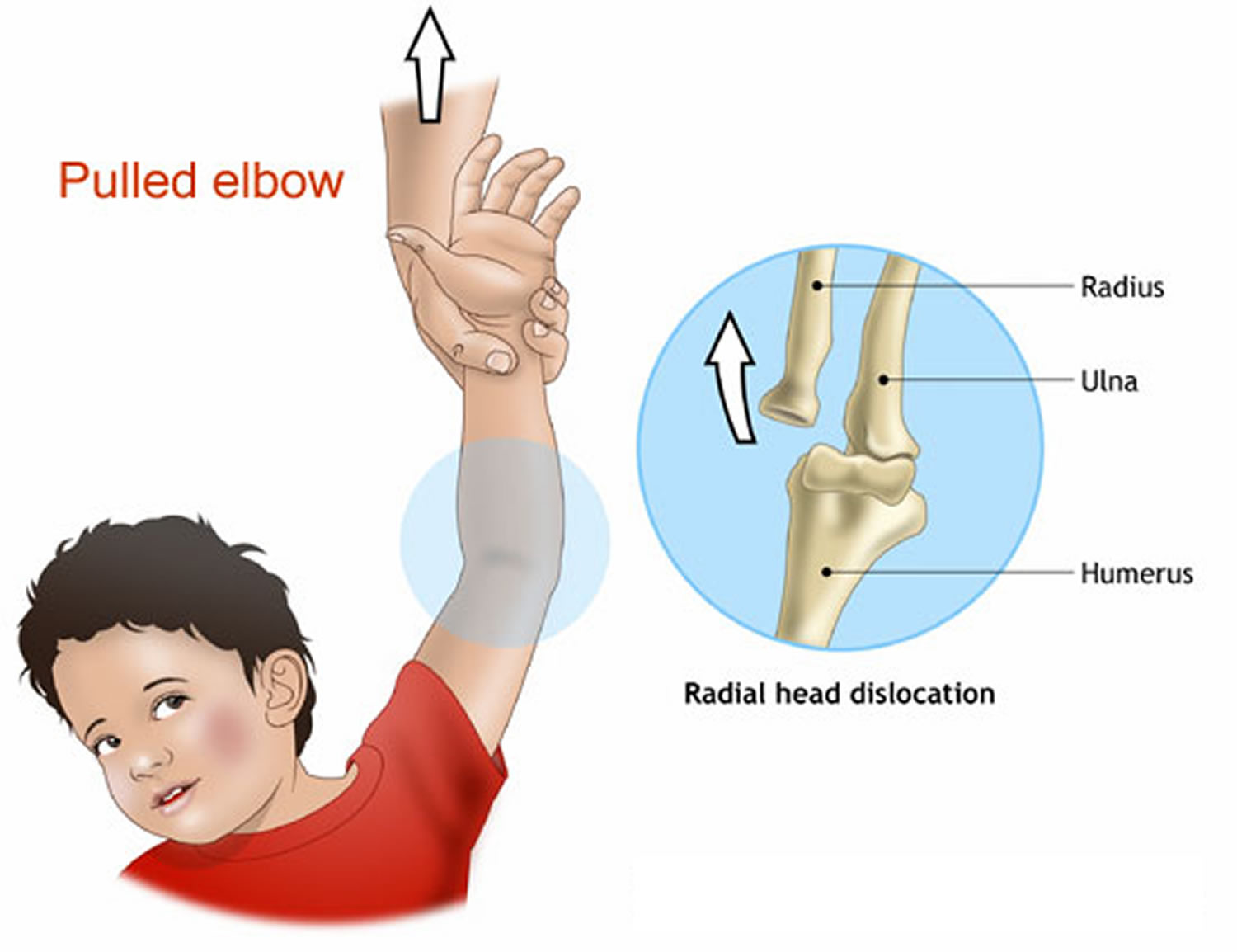in Elbow adults subluxation