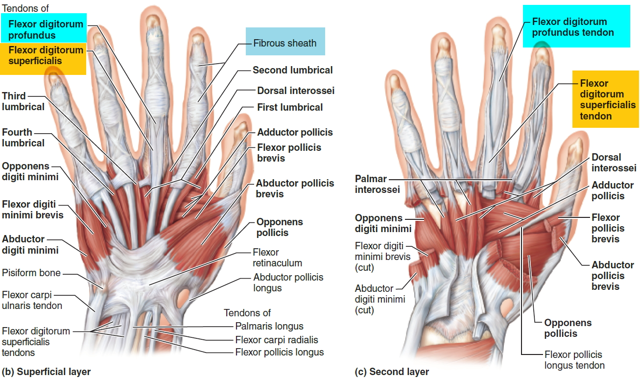 Trigger Finger - Causes, Symptoms, Splint, Exercises, Treatment