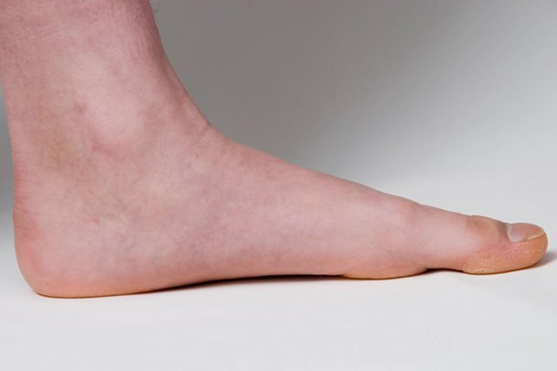 Shoes For Flexible Flat Feet