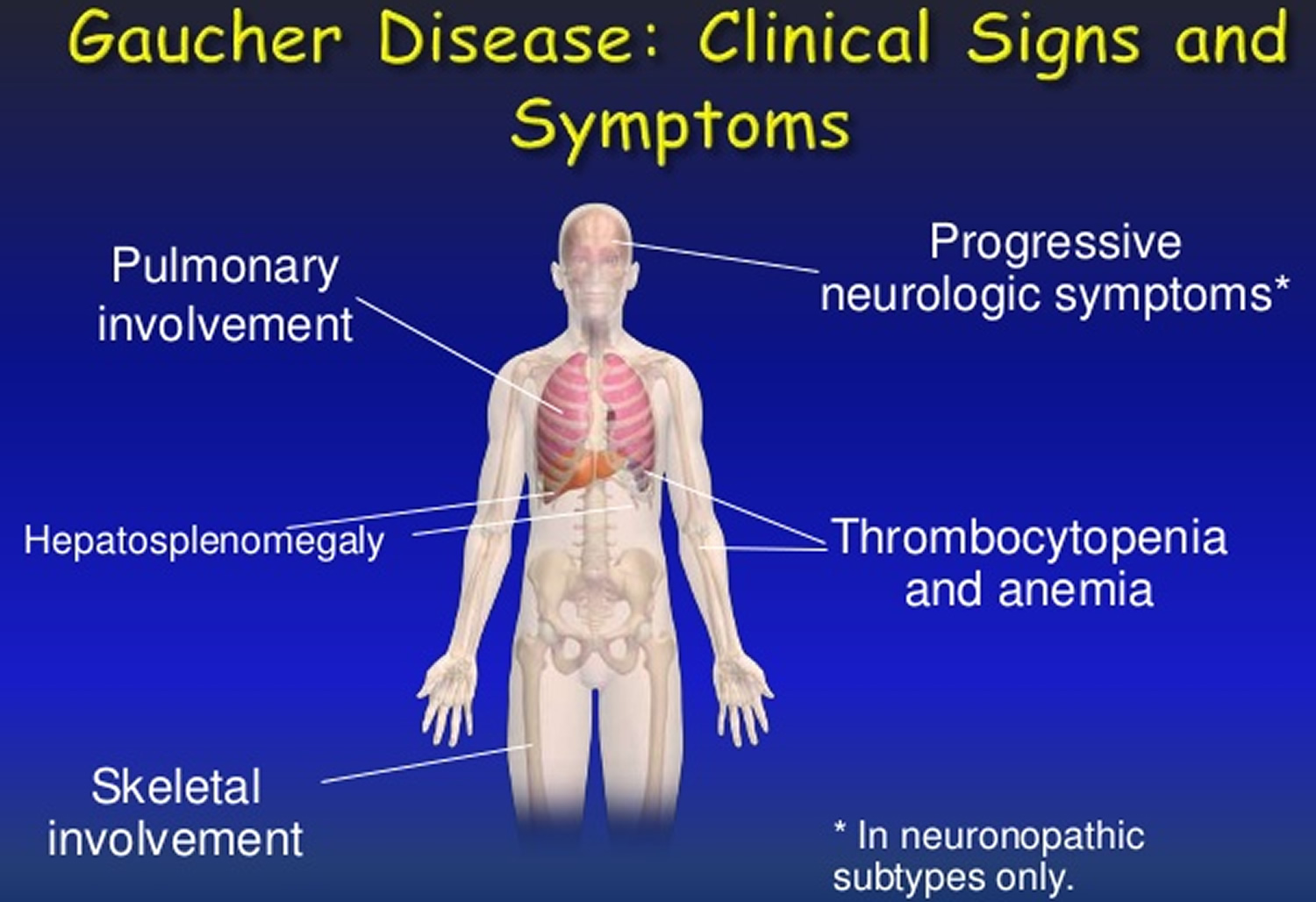 Gaucher Disease - Causes, Types, Symptoms, Treatment