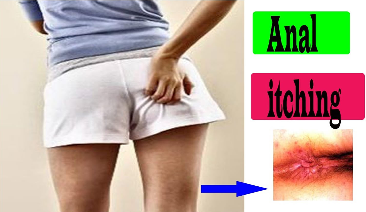 Itchy Anus - Causes, Treatment - How To Stop Anal Itching-1106