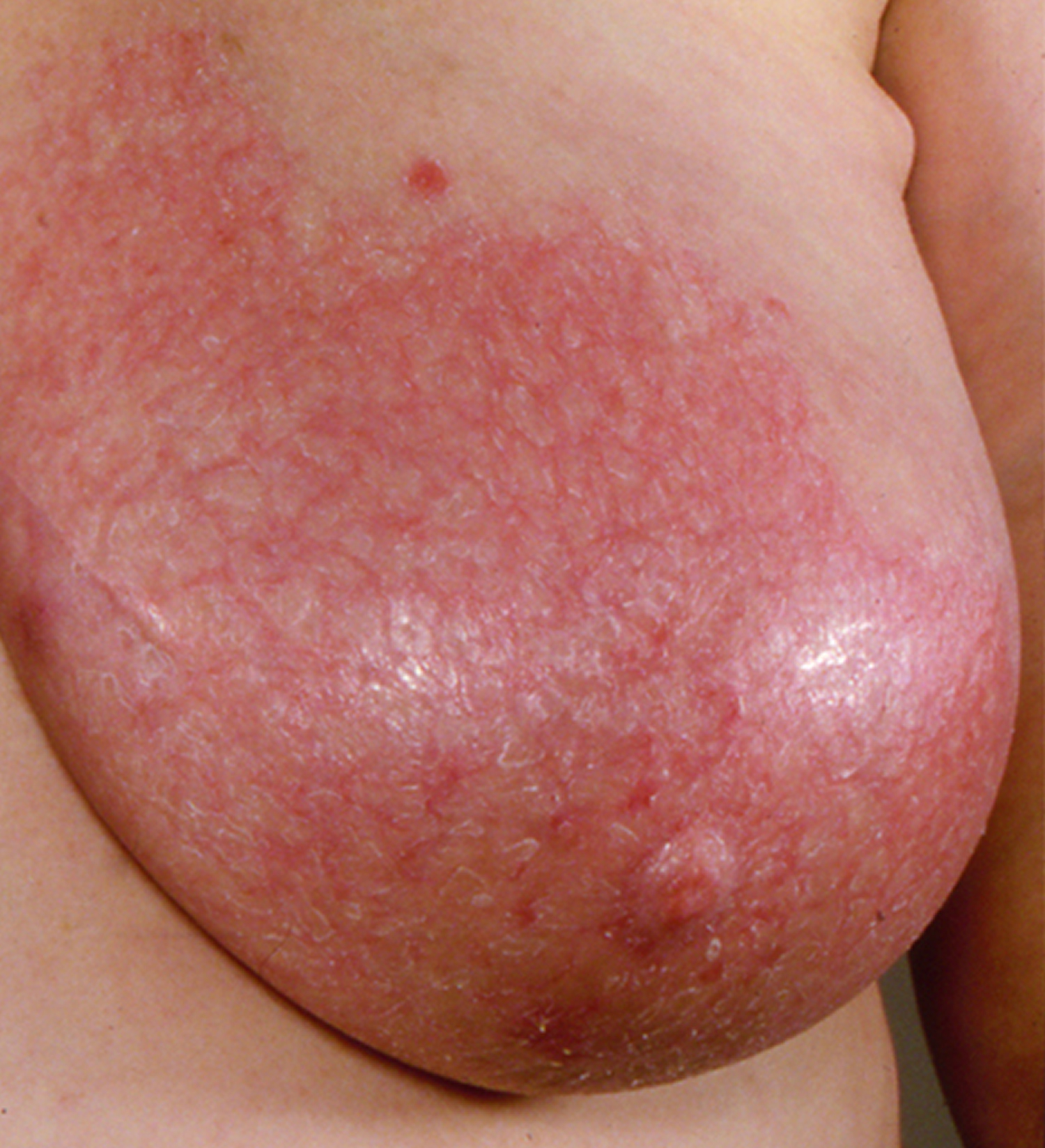 Breast Cancer Symptoms And Early Warning Signs
