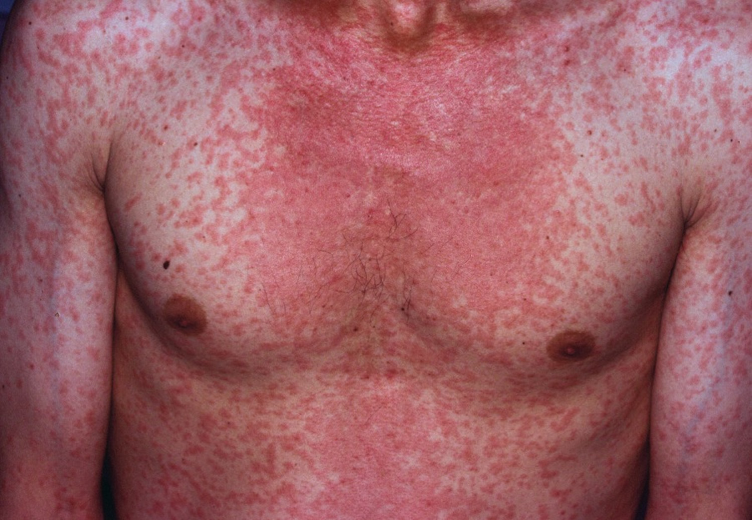 Facts about Rubella for Adults  Adult Vaccination