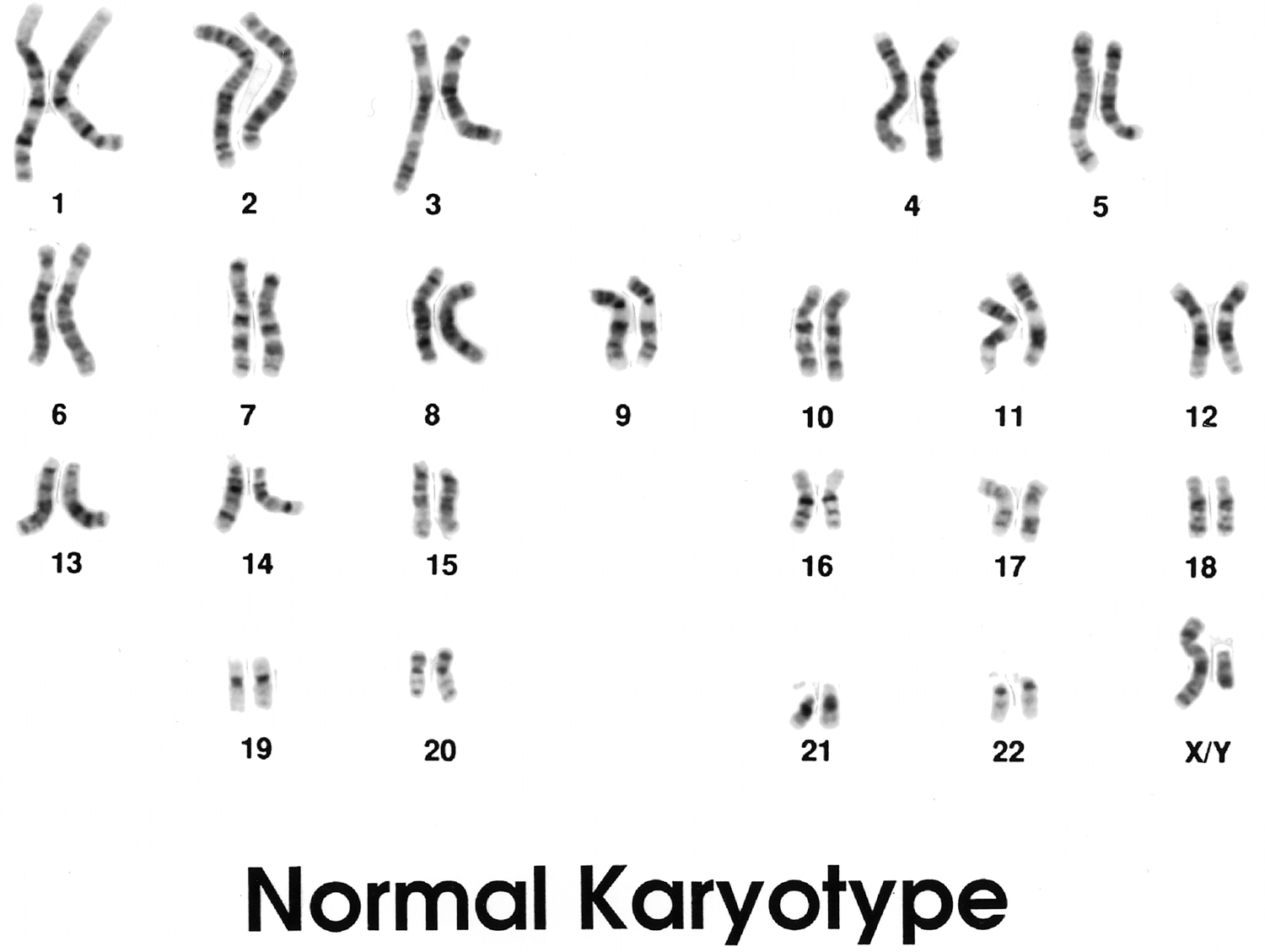 first image of Karyotype Male with Triple X Syndrome - Causes, Symptoms, Treatment
