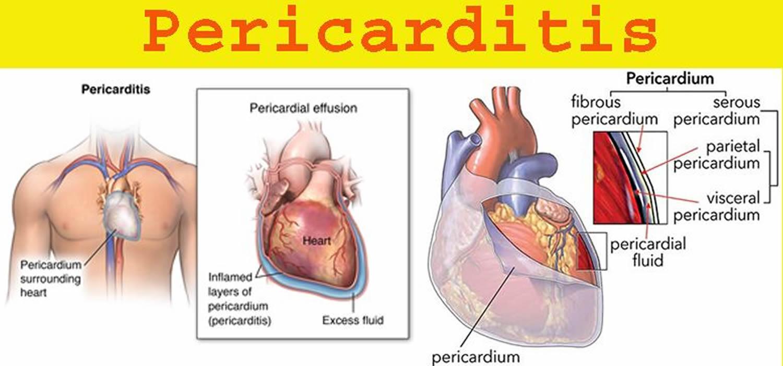 Pericarditis 82