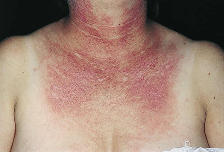 photosensitivity rash