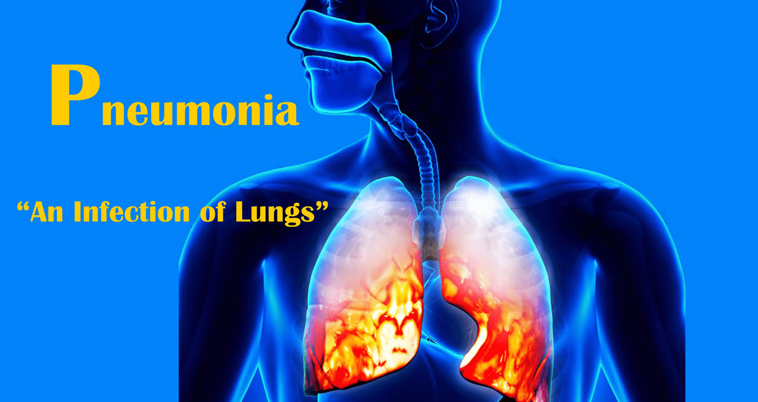 What is pneumonia and what it is 30